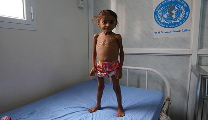 Dilanda Kelaparan, Warga Yaman Terpaksa Makan Daun