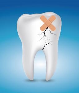 syndrome de la dent fêlée