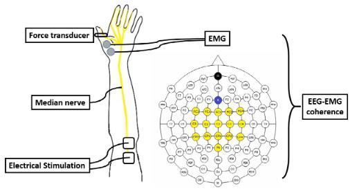 図:電気刺激と脳波