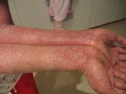 Obat Herbal Mengobati Alergi