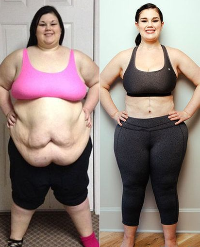How to firm your skin after weight loss for BBW big beautiful woman ?