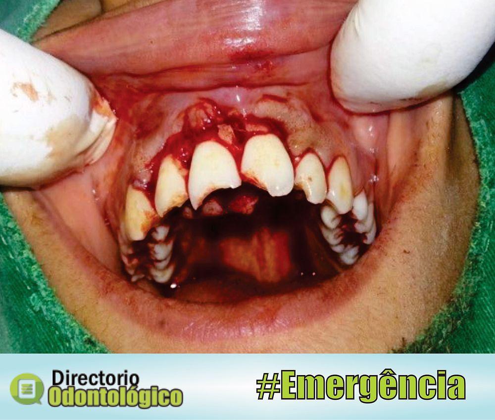 avulsão-dentária