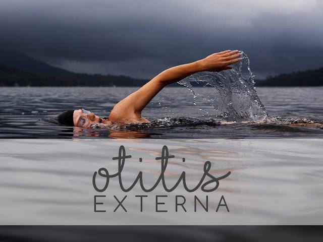 OTITIS EXTERNA