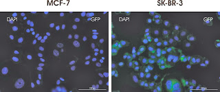 Anti-EGFR antibody staining of Live MCF-7 and SK-BR-3 cells.