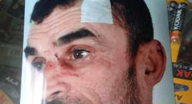 إنزكان: جانج يعرض حارس أمن لاعتداء وحشي، بعد محاولة فاشلة لاختطاف تلميذة.(صورة)