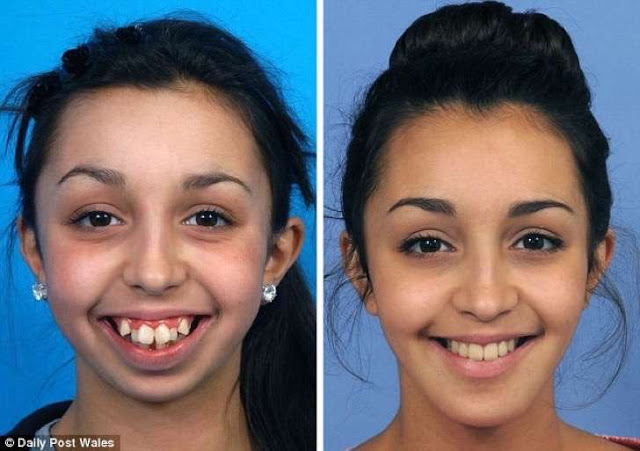 cambio con operacion de mandibula y dentadura.