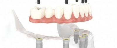 Implant khi mất một răng như thế nào?