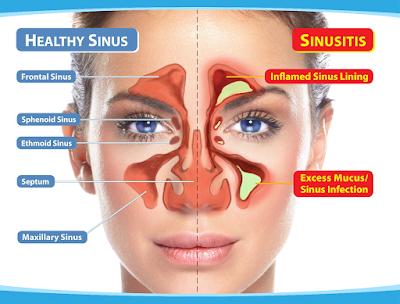Bahaya Sinusitis Pada Anak Bisa Sampai Meningitis