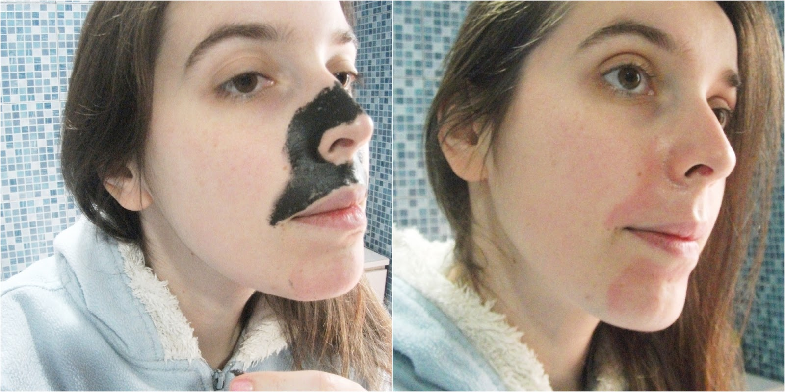 Aplicação e Resultado da Máscara c/ Carvão para Pontos Negros, Daiso Japan