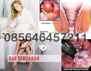 Gambar Pantat Ada Benjolan Wasir (Hemoroid)