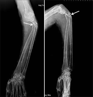 osteomalacie radiografie