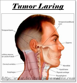 Kenali Penyebab Seseorang Mengalami Tumor Laring Pada Tenggorokan