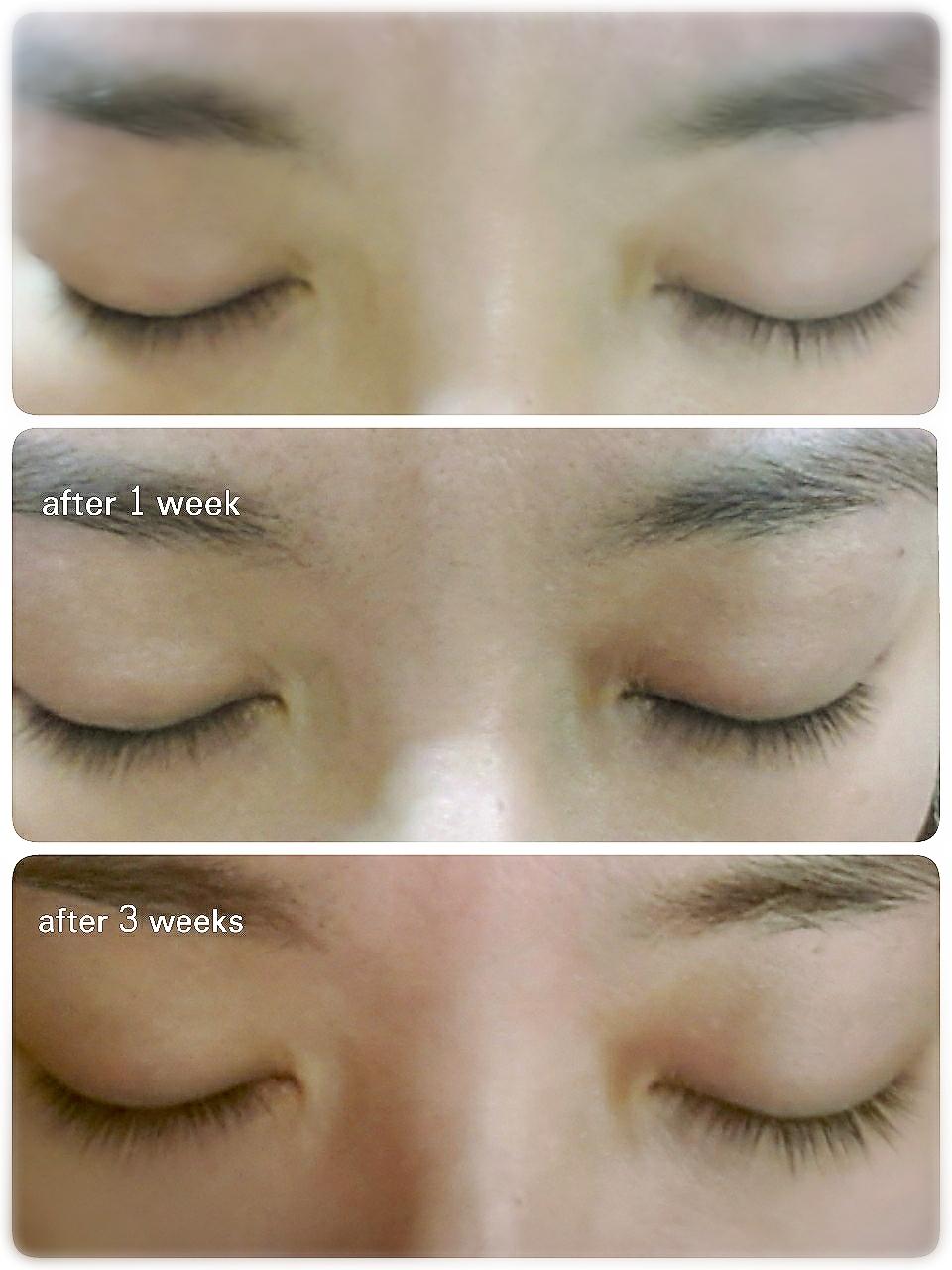 517864aebe5 Shiseido: Shiseido Adenovital Eyelash Serum Review