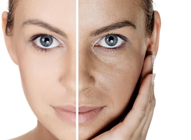 Los mejores medios contra las manchas de pigmento sobre la persona
