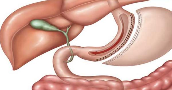 عملية تكميم المعدة Sleeve gastrectomy