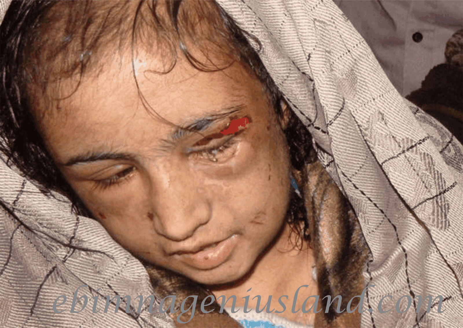 Woman Beats Her House Help to Serious Injury In Anambra State