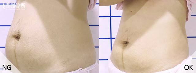 vanquish-隔空減脂-健康窈窕專家,盧威廷醫師-彤顏診所-皮膚專科-塑身-減肥-瘦身-緊實-曲線-局部雕塑-瘦腰-瘦小腹-瘦大腿-瘦手臂-醫學美容-隔空溶脂費用-隔空減脂效果