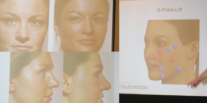 Juvéderm Blogger Infoday 2015 - Vorher/Nachher - 8 Point Lift - Dermalfiller