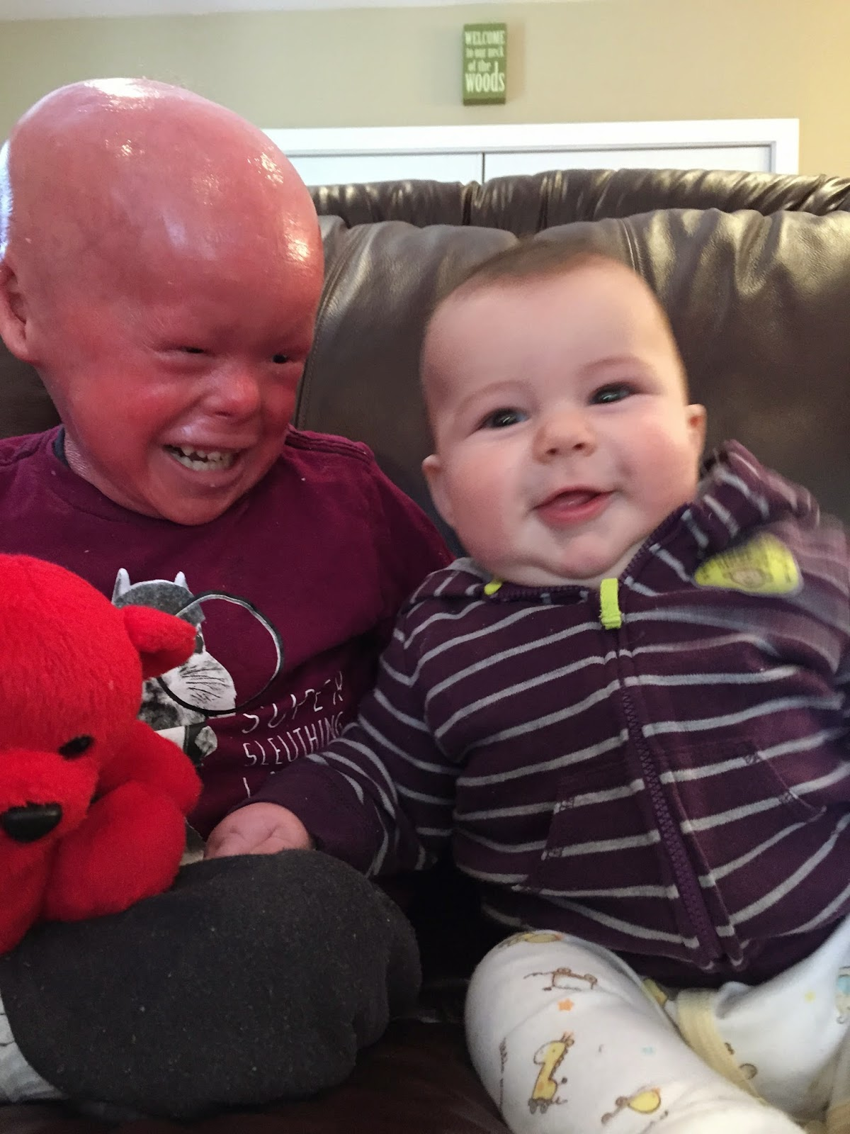 Evan, who has Harlequin Ichthyosis,with his brother