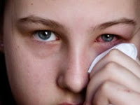 4 Cara Mengobati Sakit Mata Merah, Bengkak dan Berair