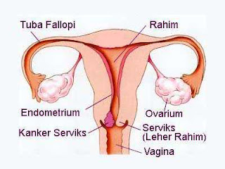 Penyakit Kanker Serviks Pada Wanita