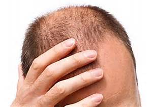 Haar-Verlust-Kopfhaut-Störung: Seborrhoische Dermatitis