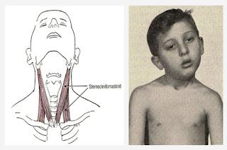 Benjolan di Leher Menandakan Penyakit Berbahaya, Apa Penyebabnya?