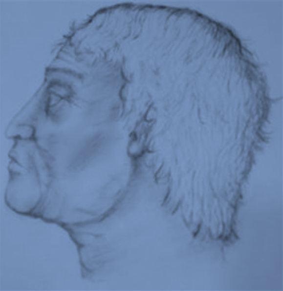 Ακτινογραφία στα λείψανα άνδρα του 4ου π.Χ. αιώνα