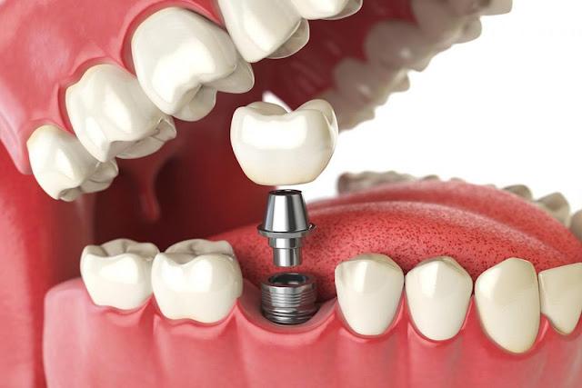 تركيب الاسنان ..أنواعها وطرق العناية بها