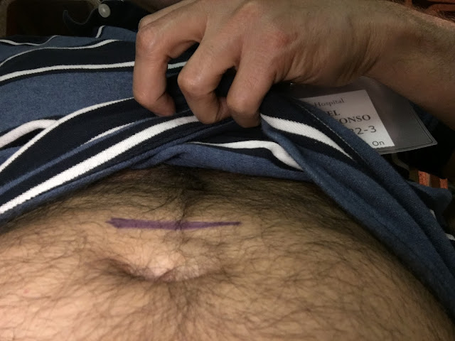 Incision site marked – above the belly button