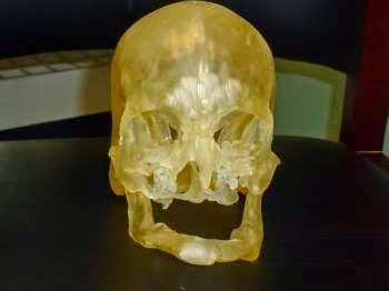 Un modello stampato in 3D per pianificare un trapianto di viso