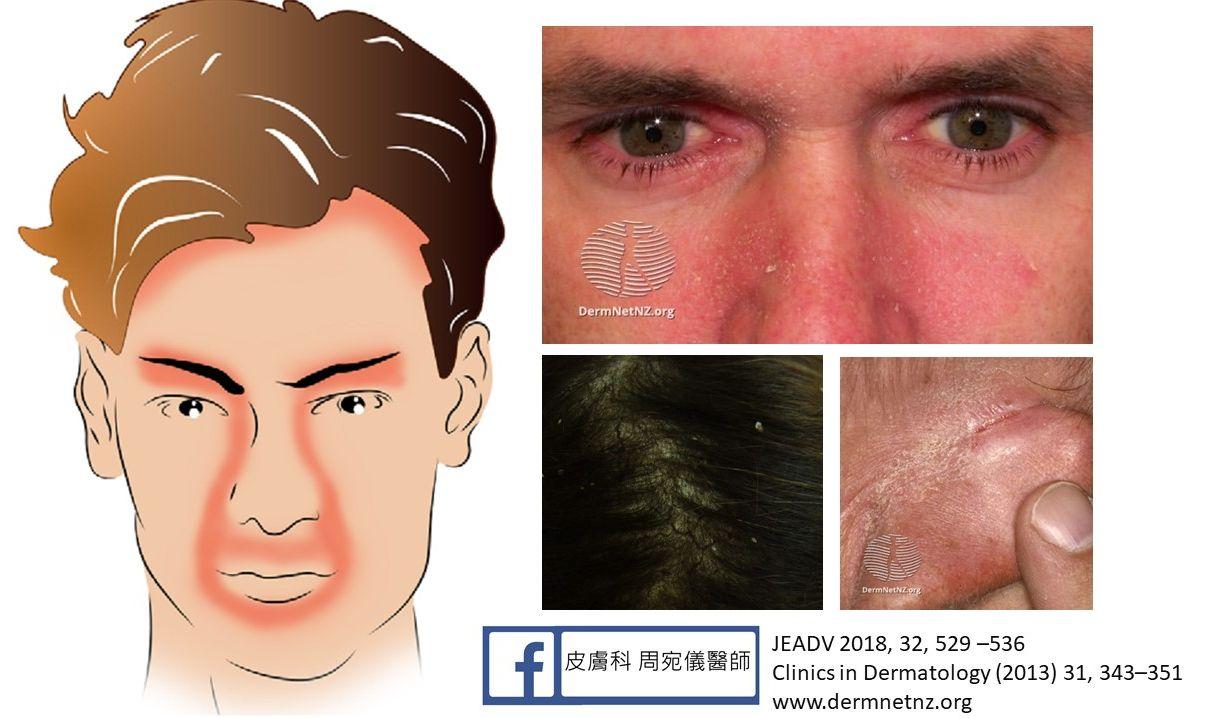 皮膚 頭皮 脂 画像 性 炎 漏