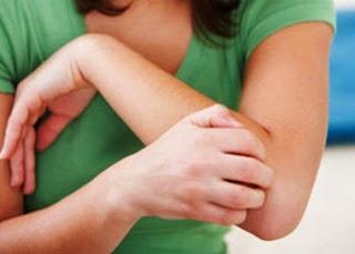 Kenapa Kulit Muncul Bintik Kecil Melingkar dan Terasa Gatal