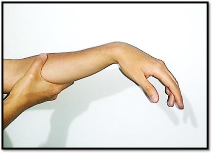 Lesión del Nervio Radial - Radial Nerve Palsy: QUÉ ES UNA LESIÓN DEL ...