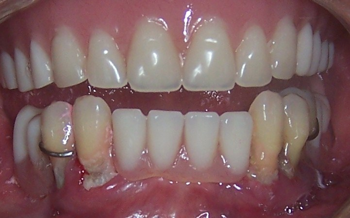 IMMEDIATE DENTURE | Prosthetic Dentistry | dental india ...