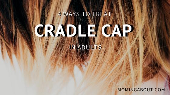 Moming About: 4 Ways to Treat Adult Cradle Cap (Scalp Psoriasis)