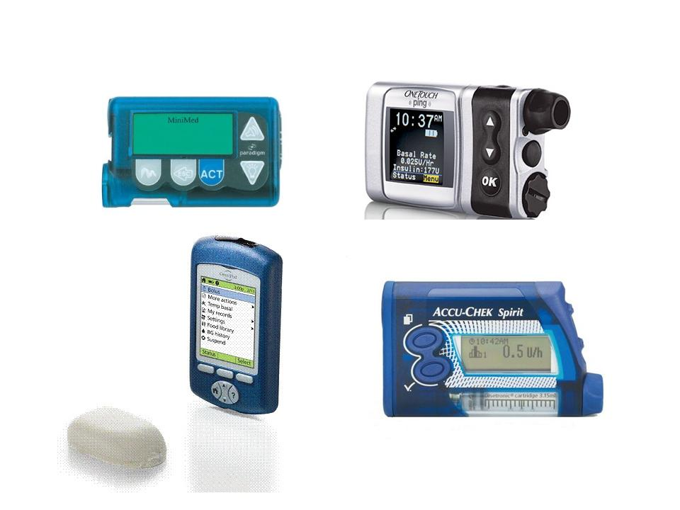 The Progression of Insulin Pumps