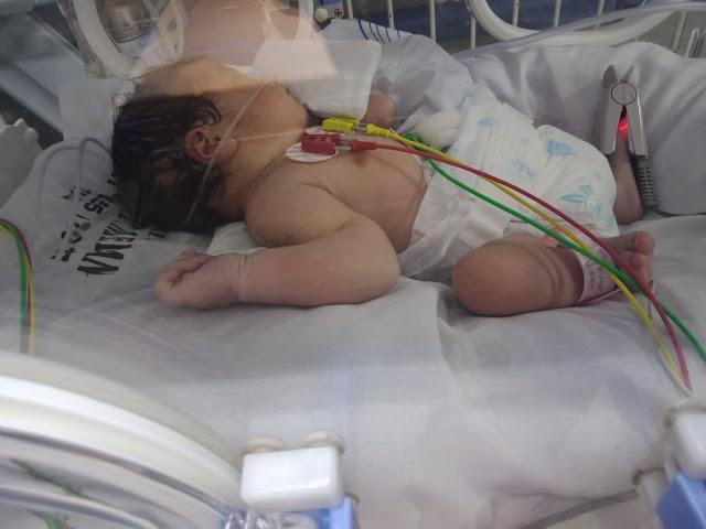 Syaqeena Almahira bayi asal Asahan yang lahir dengan usus berada di luar,