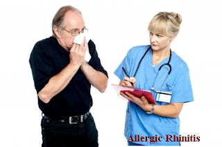allergic-rhinitis