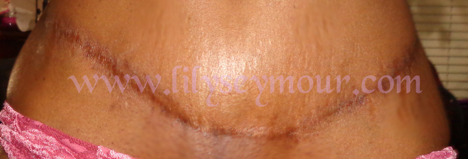 African American Tummy Tuck Surgery