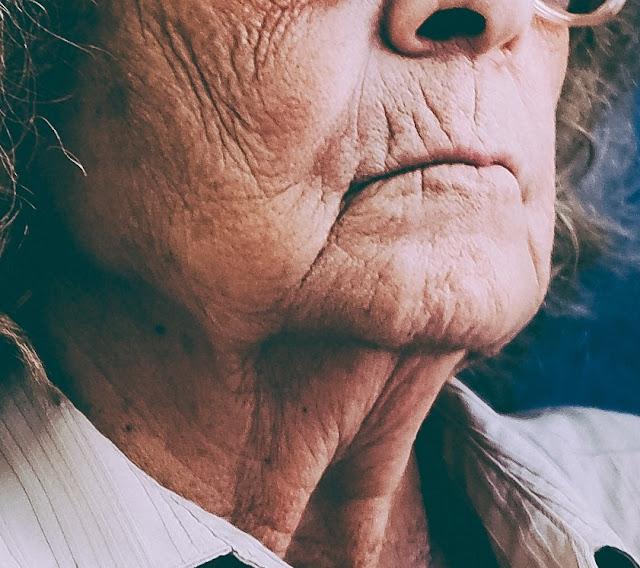 La imagen muestra dos características del envejecimiento severo: la aparición de surcos muy profundos y el descolgamiento generalizado de la cara y el cuello.