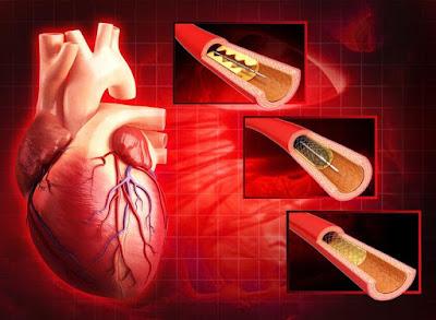 cardio-chennai.billrothhospitals.com/coronary-angioplasty-and-stenting/