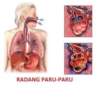 penyakit paru paru di sebut
