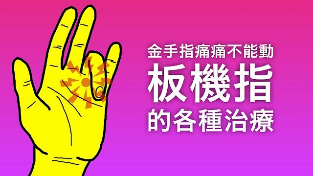 好痛痛 板機指 治療 物理治療 類固醇 微創手術 消炎藥 超音波 蠟療 trigger finger