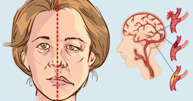 obat stroke tradisional