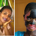GRAPHIC: Scorned Estranged Husband Baths Wife With Acid, Leaves Her Completely Useless