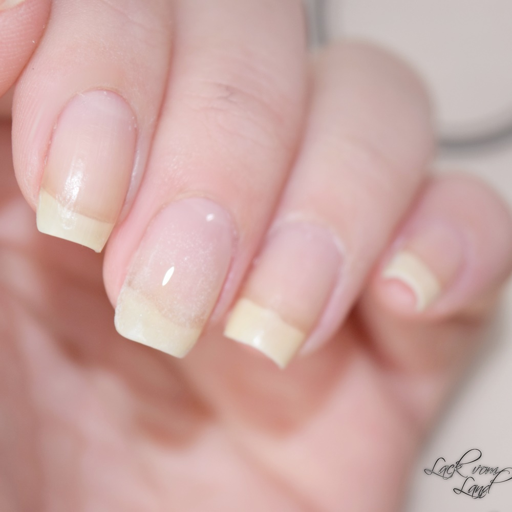 Review] ORLY Nail Repair Kit – Lack vom Land