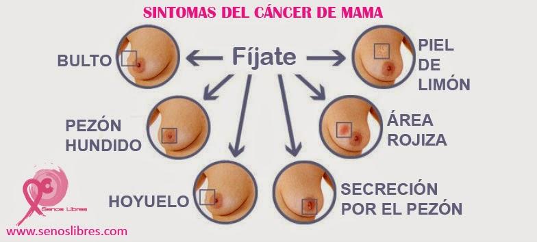 Tumores benignos de la mama - Salud al da