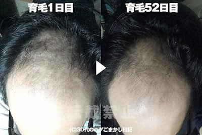 フィンペシア・ボストン・RHIZOGAINを使用して52日目の頭皮
