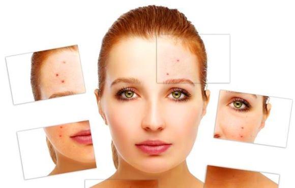 ujian jenis kulit mudah